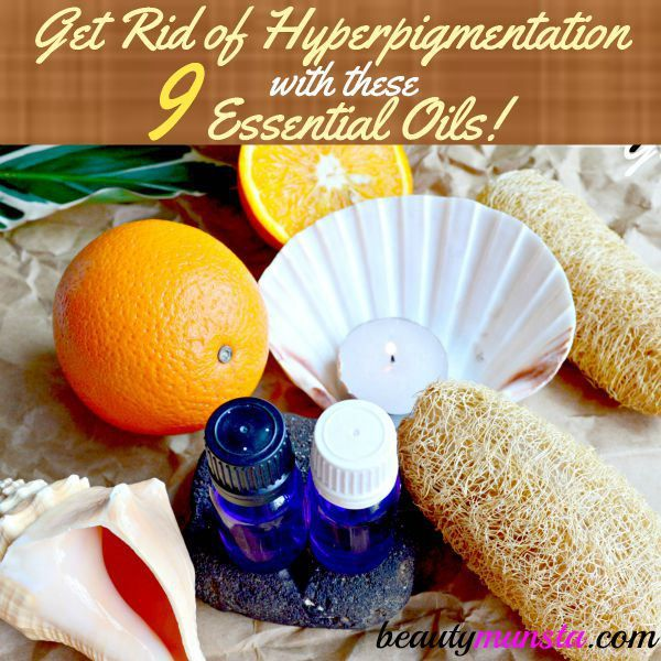 Fotografía - 9 aceites esenciales eficaces para la hiperpigmentación