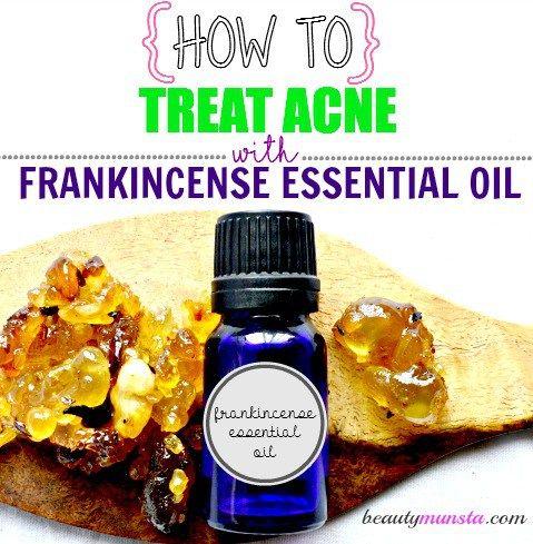 Fotografía - Incienso Aceite Esencial para el acné