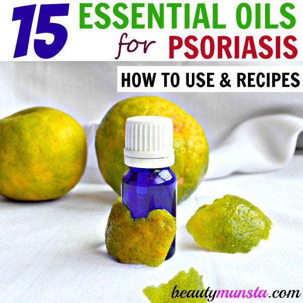 Fotografía - Lista de los mejores aceites esenciales para tratar la psoriasis y Recetas