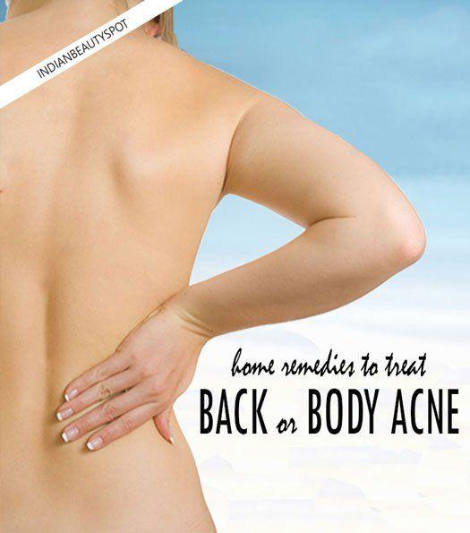 Fotografía - Tratamientos naturales para deshacerse del cuerpo o la espalda acné