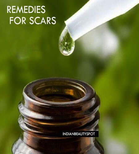Fotografía - Naturalmente reducir la cicatriz con remedios sencillos