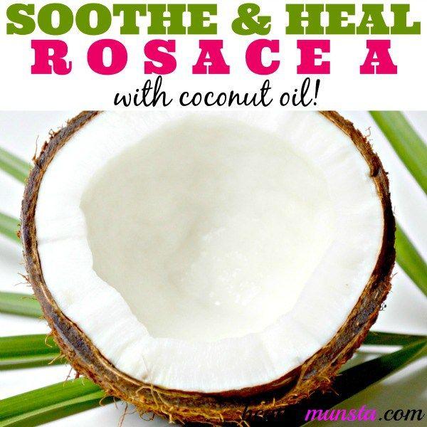 Fotografía - La rosácea Tratamiento de aceite de coco para aliviar y curar
