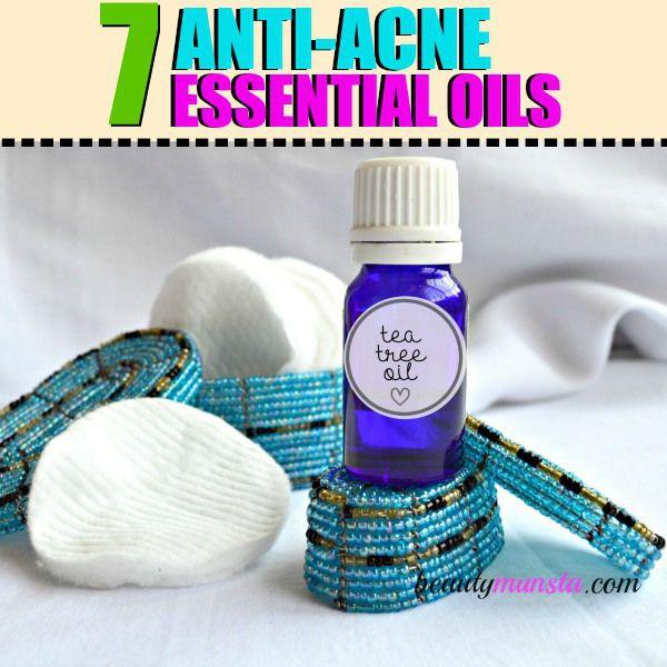 Fotografía - Top 7 Aceites esenciales para el tratamiento del acné