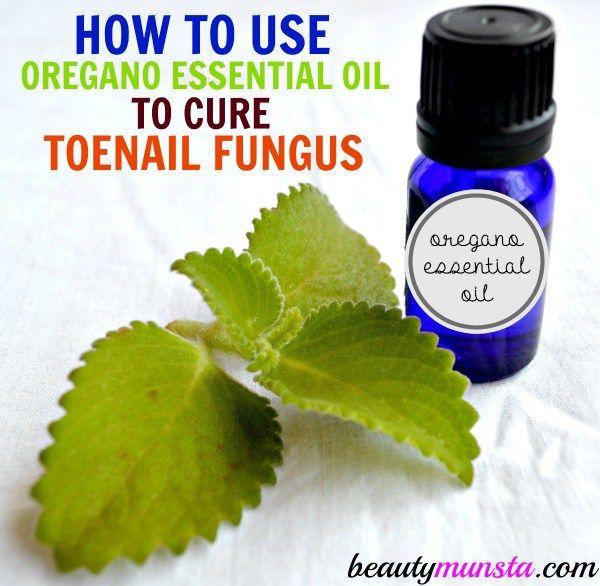 Fotografía - El uso de aceite esencial de orégano para la uña hongo | Cura Natural